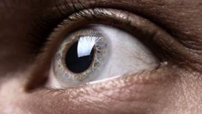 Krátkozrakost (myopie)