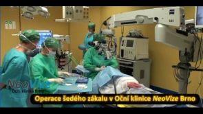 Operace šedého zákalu