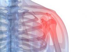 Syndrom zmrzlého ramene lze léčit rychle a moderně