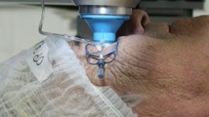 Historicky první operace šedého zákalu bez skalpelu