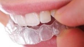 Trápí vás křivé zuby?