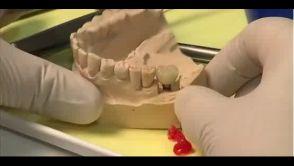 Dentální implantát místo chybějícího zubu
