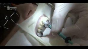 Ošetření kazu bez vrtání ICON