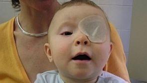 Novorozenecká katarakta (vrozený šedý zákal)