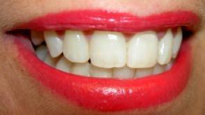 Vše co potřebujete vědět o zubních implantátech