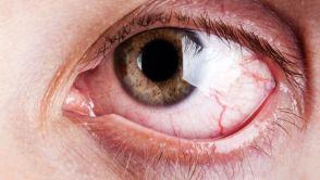Plugy - Nová metoda pro léčbu syndromu suchého oka