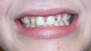 Cesta ke krásným a rovným zubům