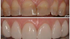 Chybí vám vúsměvu zub? Vyřeší to zubní implantát