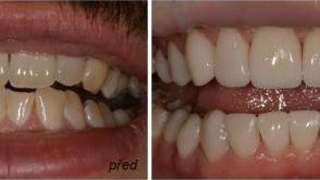Co jsou to zubní fasety a proč díky nim budete mít krásný úsměv?