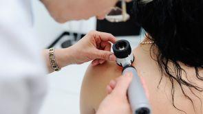 Odstranění znamének, kožních výrůstků