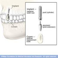 zubni-implantaty