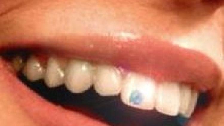 Cesta k zářivému úsměvu: dentální šperky